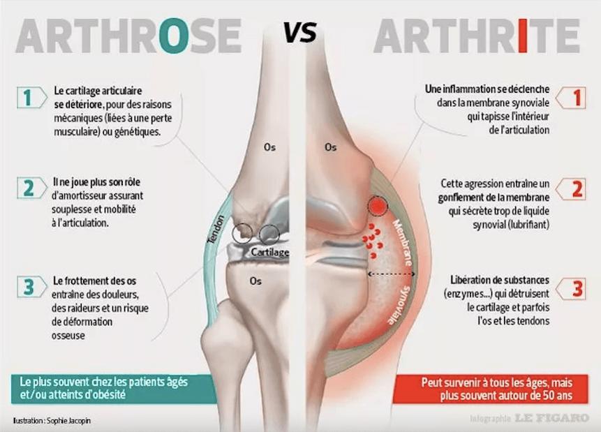 Schéma arthrose vs arthrite : comprendre la différence
